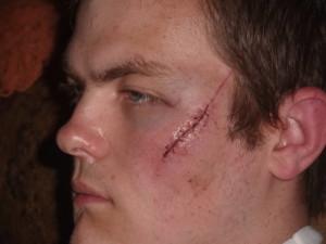 second degree aggravated assault nj